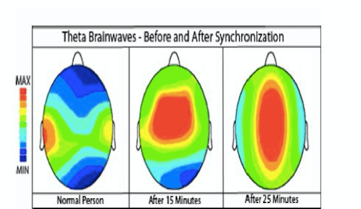 fMRI Scan of Brain Before and After using Theta Wave Meditation